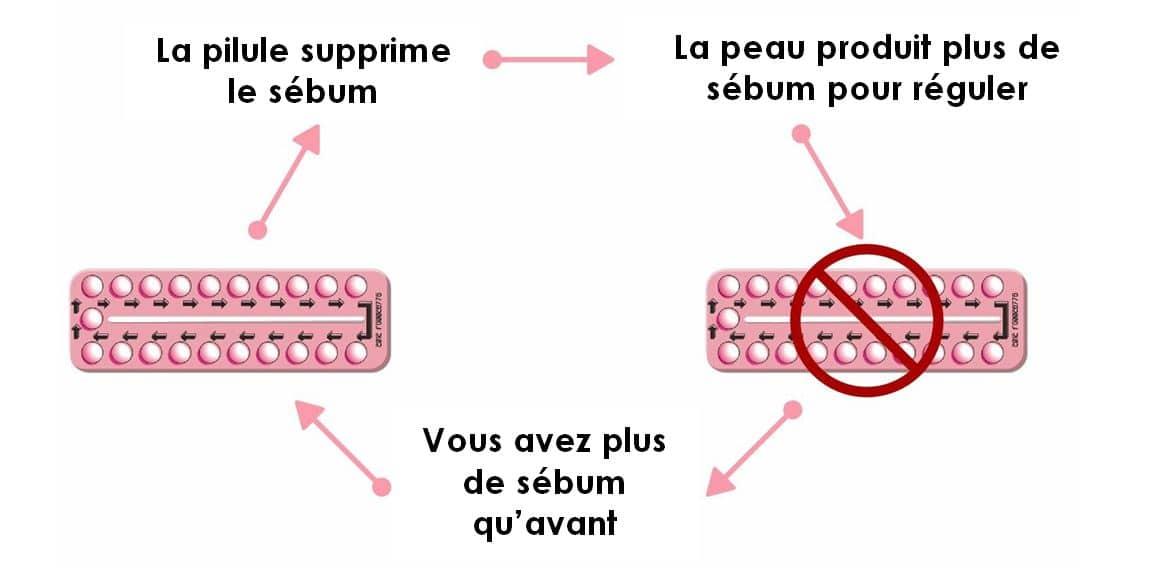Sous pilule contraceptive, la peau produit plus de sébum, ce qui risque d'engendrer de l'acné après l'arrêt